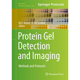 Protein Gel Detection and Imaging: Methods and Protocols