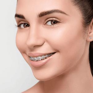 Ortodoncia Autoligado