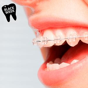 Control Ortodoncia Cerámica