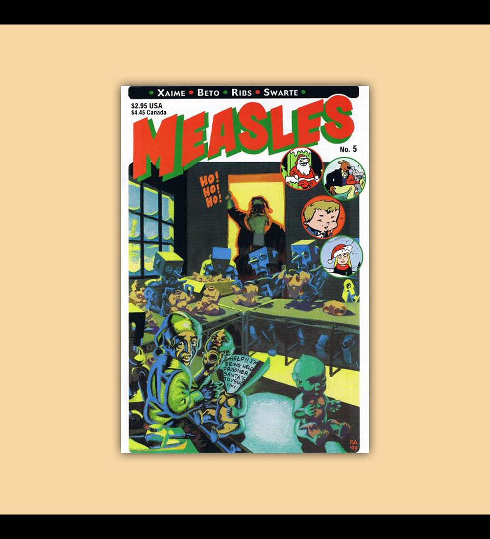 Measles 5 1999