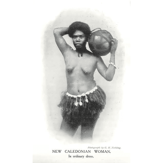 1910 New Caledonian Woman In Ordinary Dress Carrying Gourd
