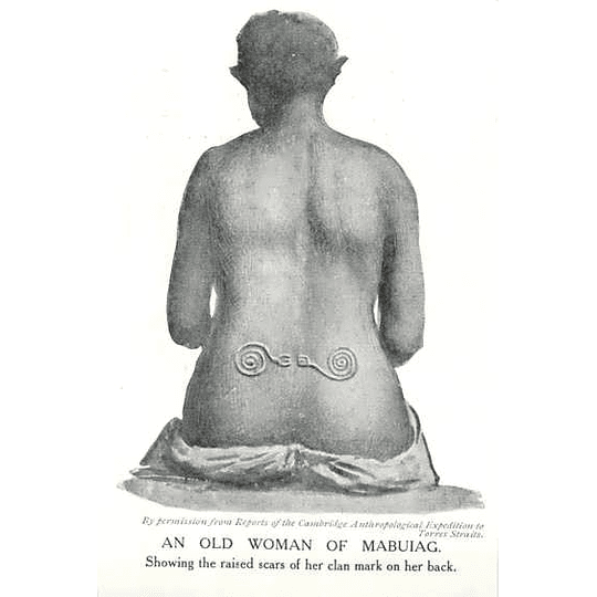 1910 An Old Woman Of Mabuiag, Showing Raised Scars Clan Mark On Back
