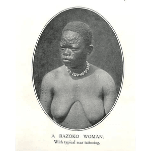 1910 A Bazoko Woman Was Typical Scar Tattooing