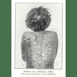 1910 Woman Of Larrakia Tribe Showing Scars, Sign Of Widowhood