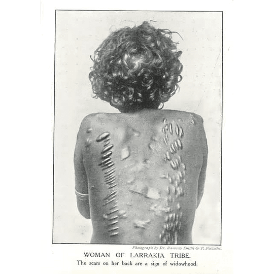 1910 Woman Of Larrakia Tribe Showing Scars, Sign Of Widowhood