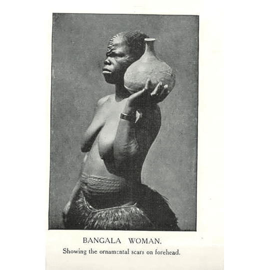 1910 Bangala Woman Showing Ornamental Scars On Forehead