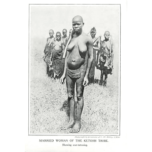 1910 Married Woman Of The Ketosh Tribe Showing Scar Tattooing