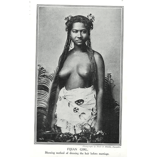 1910 Fijian Girl Showing Method Of Dressing Hair Before Marriage