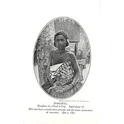 1910 Dakofel, Daughter Of A Chief Of Uap, Coconut Protection After Ear Piercing