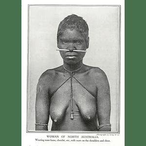 1910 Aborigine Woman Of North Australia Wearing Nose Bone Scars On Shoulders