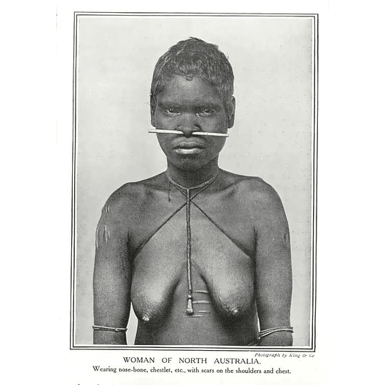 1910 Aborigine Woman Of North Australia Wearing Nose Bone Scars On Shoulders