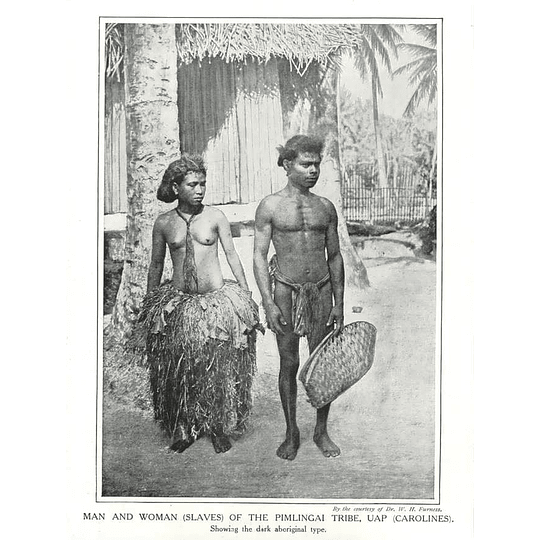 1910 Man And Woman Slaves Of The Pimlingai Tribe, Uap, Carolines,