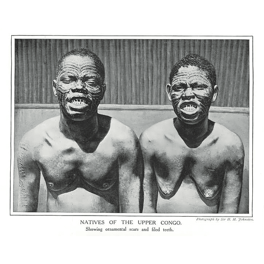 1910 Natives Of The Upper Congo Showing Filed Teeth And Scars