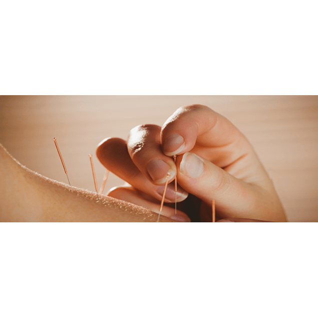 Acupuntura / Acupuncture