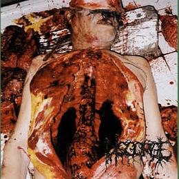 Disgorge  – Chronic Corpora Infest CD