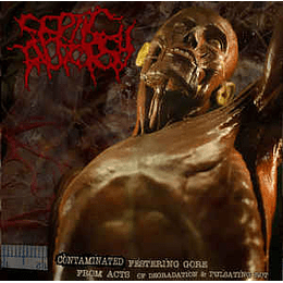 Septic Autopsy – Contaminated Festering Gore From Acts of Degradation & Pulsating Rot CD