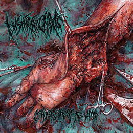 Hysterorrhexis – Maggots Infest The Limb CD