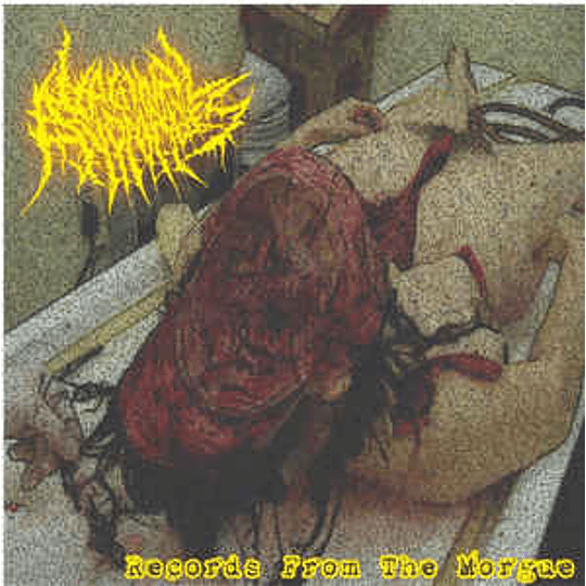 Vaginal Anomalies – Archives From The Morgue CD