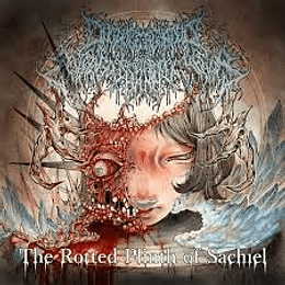 Onchocerciasis Esophagogastroduodenoscopy - The Rotted Plinth of Sachiel CD