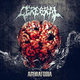 CEREBRAL - Agorafobia MCD