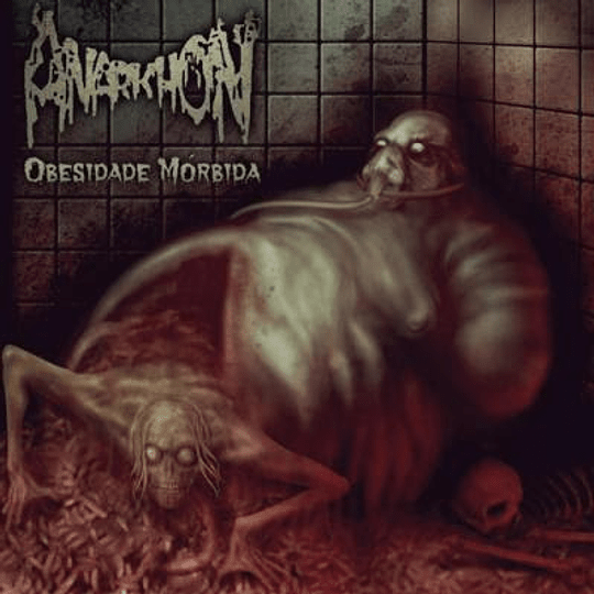 ANARKHON  Obesidade Mórbida CD