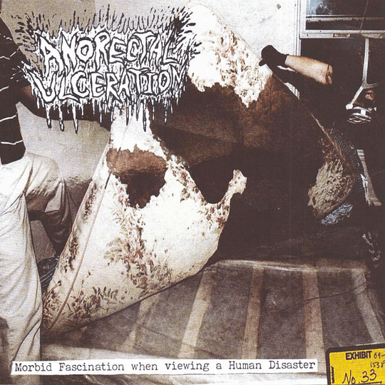 AN*RECTAL ULCERATION – Morbid Fascination When Viewing A Human Disaster CD