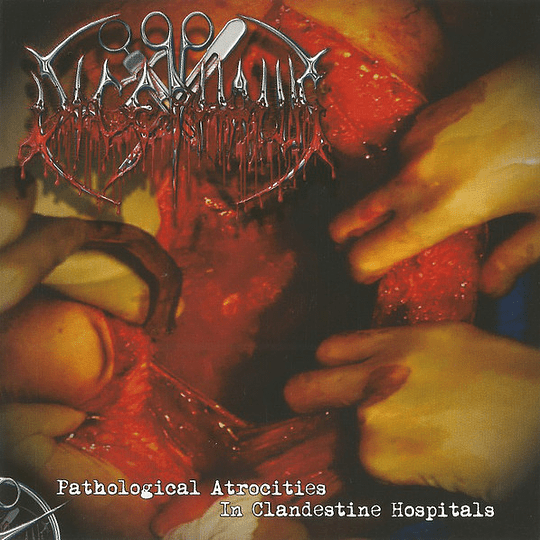 DICEPHALUS -  Pathological Atrocities In Clandestine Hospitals CD