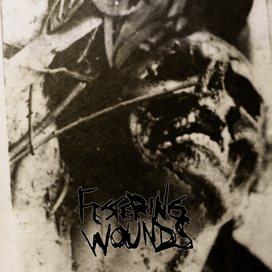 FESTERING WOUNDS -  S/t CD