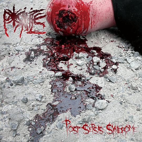 PORIFICE - Post-Sepsis Syndrome CD