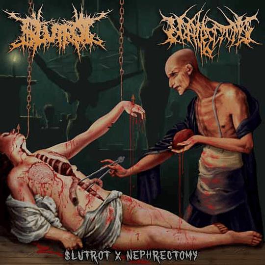 $LUTROT / NEPHRECTOMY - $lutrot X Nephrectomy SPLIT CD