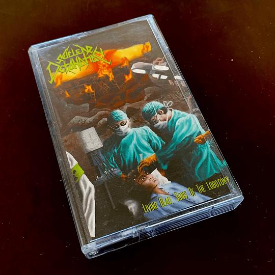 NUCLEAR DETONATION - Living Dead, Sons Of The Lobotomy CASSETTE