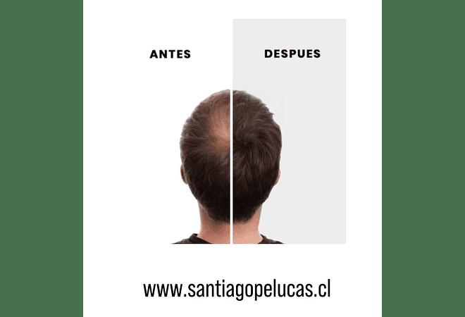 PROMO NANO HAIR + RECARGA - NEGRO