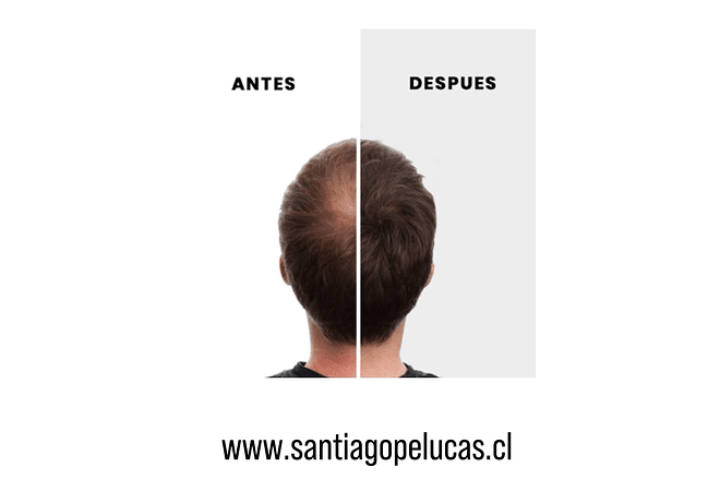 PROMO NANO HAIR + RECARGA - CASTAÑO OSCURO