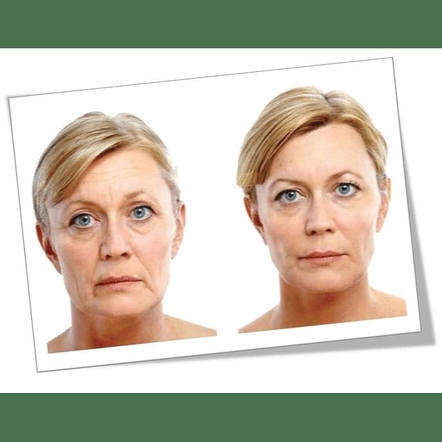 Máscara retinol Chile mascarilla gel gervitol Fontboté arrugas reafirmante