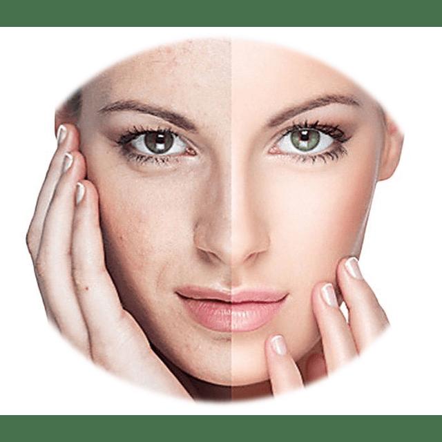 Crema blanqueadora día disminuye manchas aclarante rostro y cuello