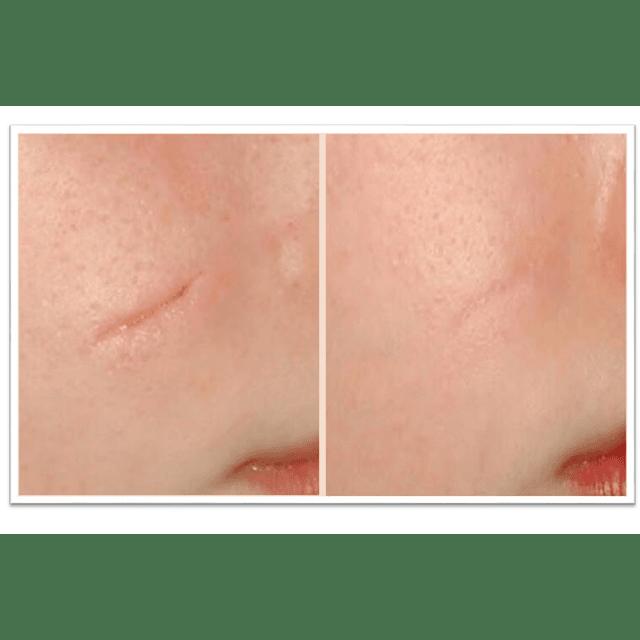 Loción mático concentrada cicatrizante aclara imperfecciones manchas