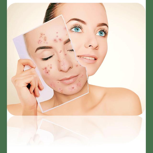 Jabón control seb levinia antiacné purificante espinillas piel grasa