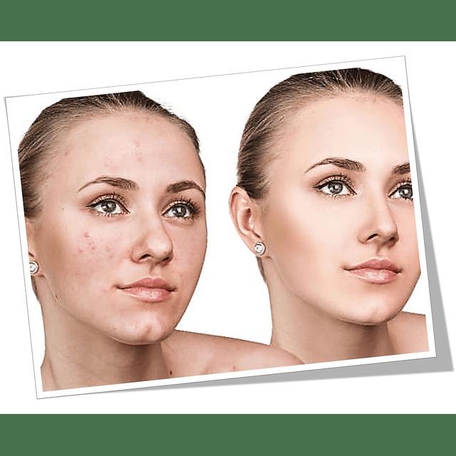 Gel purificante + Jabón piel grasa rostro control seb levinia dermik