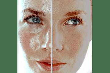 ¿Cómo cuidar la piel grasa y que productos debería comprar para cuidar mi rostro?