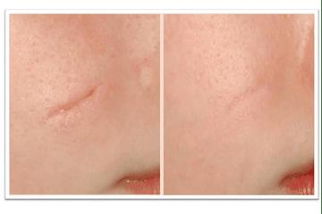¿Por qué salen las cicatrices y con qué produtos podemos atenuarlas?