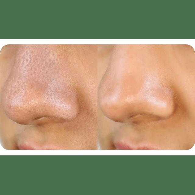 Gel exfoliante clearskin avon aloe vera anti puntos negros facial