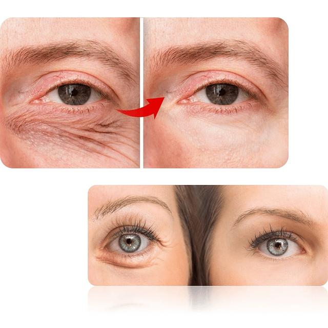 Crema ácido hialurónico contorno ojos rellenadora antiarrugas parpados