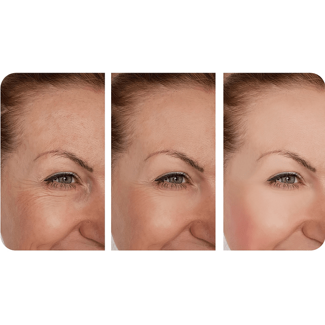 Serum vitamina C concentrada suero rostro anti oxidante arrugas Chile