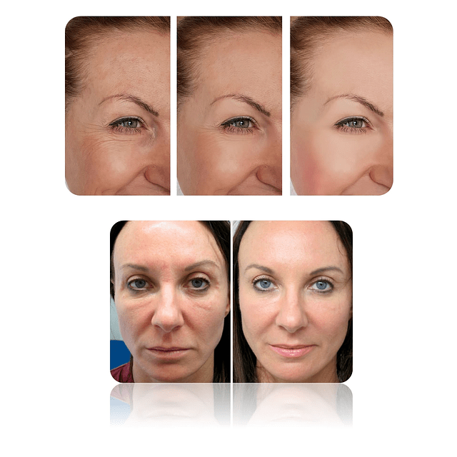 Crema elastina plus Fontboté concentrada reafirmante flacidez facial arrugas