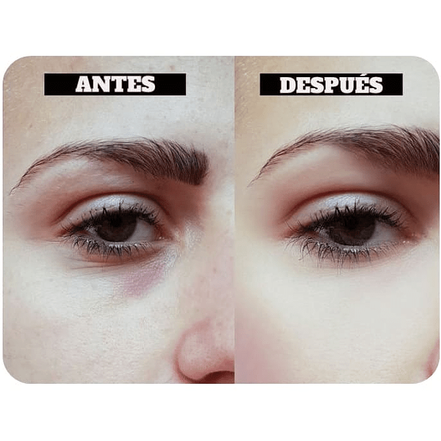 Serum roll on ácido hialurónico colágeno elastina antiarrugas bolsas ojos