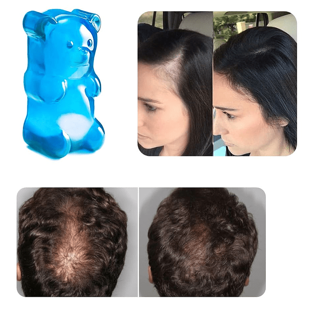 Loción spray anticaida capilar biotina crecimiento cabello vitamina B