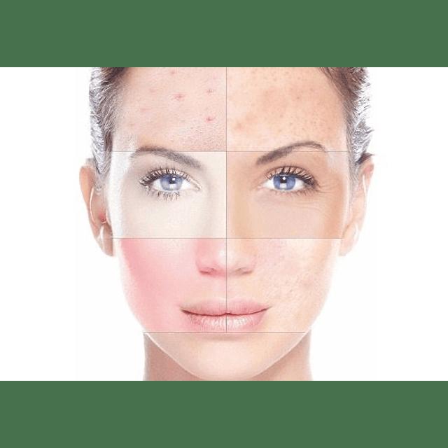 Limpiadora facial piel grasa acné puntos negros rostro pure skin oriflame