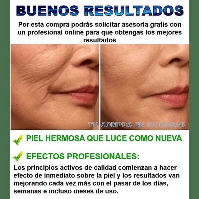 Crema + serum o suero ácido hialurónico H2 antiarrugas fontboté rostro chile