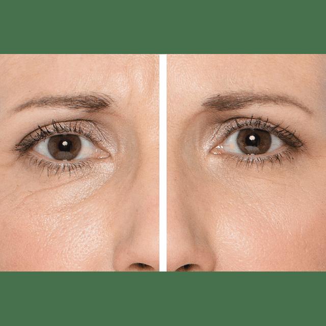 Serum tensor inmediato Fontboté argireline contorno ojos efecto lifting antiarrugas bolsas antiedad