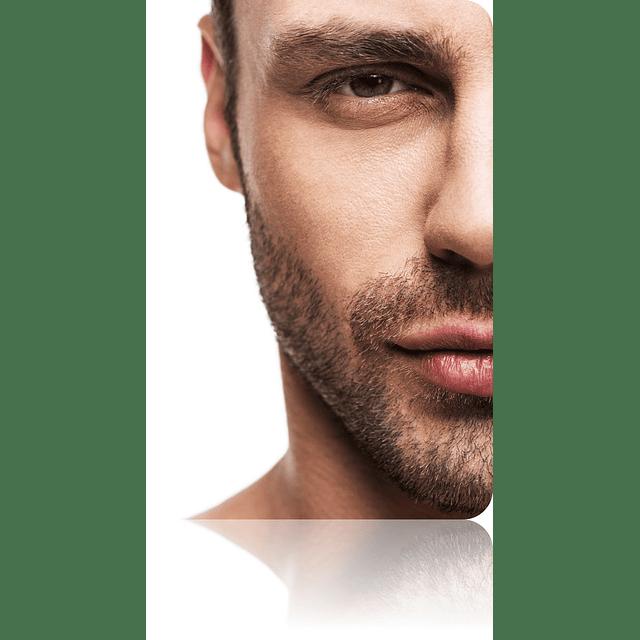 Gel acido glicolico puro 25% arrugas manchas marcas acne peeling facial chile